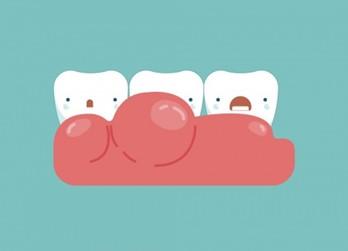 เหงือกอักเสบจัดฟันได้ แต่ต้องรักษา - Thaihealth.or.th    สำนักงานกองทุนสนับสนุนการสร้างเสริมสุขภาพ (สสส.)